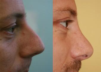 Nos před a po rhinoplastice