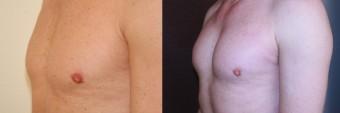 Vlevo před, vpravo po augmentaci prsů